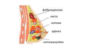 Липофиброз молочной железы что это такое