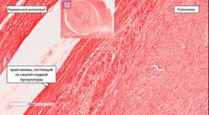 Гистология миомы матки
