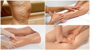 Можно ли делать антицеллюлитный массаж при миоме