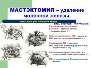 Удаление молочной железы при раке