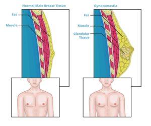 Молочные железы у мужчин