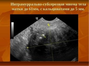 Субсерозная миома матки размеры для операции