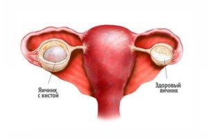 Киста ретенционная яичника