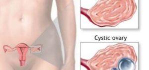 Циклодинон при кисте яичника
