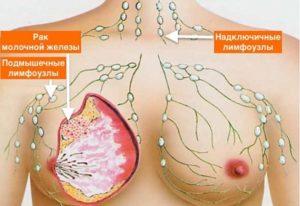 Проточный рак молочной железы