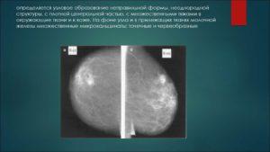 Фиброзное образование в молочной железе
