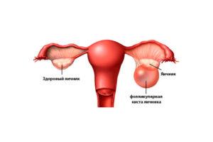 Разрыв фолликулярной кисты яичника симптомы