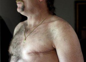Бывает ли у мужчин рак молочной железы
