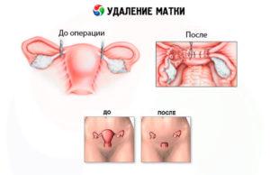 Згт после удаления яичников и матки