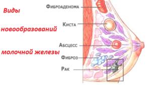 Фиброз молочной железы что это такое