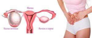 Почему болят яичники перед месячными