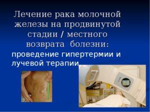 Как лечат рак молочной железы