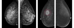 Что лучше узи или маммография молочной железы после 45