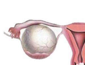 Апоплексия правого яичника что это такое