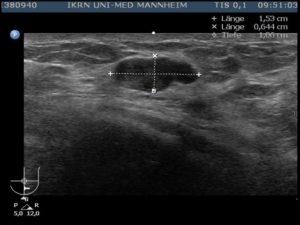Фиброаденома на узи молочной железы