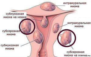 Миома интрамуральная и беременность