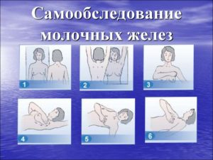Самообследование молочной железы