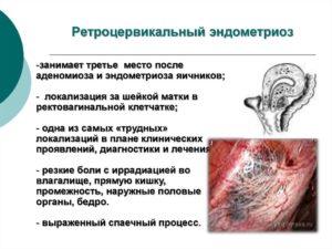 Ретроцервикальный эндометриоз что это такое