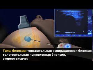Пункция молочной железы на какой день цикла делать
