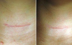 Эндометриоз рубца после кесарева сечения