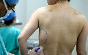Удаление имплантов из молочных желез