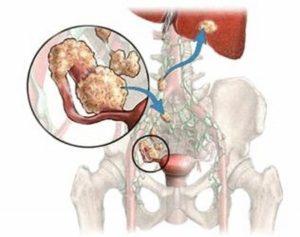 Рак яичников метастазы