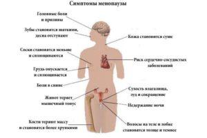 Какие симптомы бывают при климаксе у женщин
