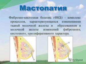 Признаки фкм молочных желез