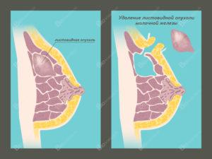Фиброкистоз молочной железы