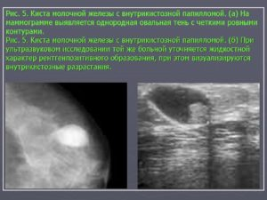 Киста молочной железы или рак