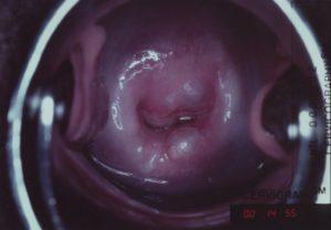 Эндометриоз цервикального канала