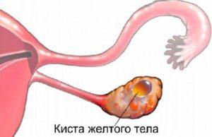 2 желтых тела в разных яичниках