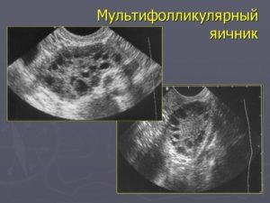 Кисты и кистомы яичников