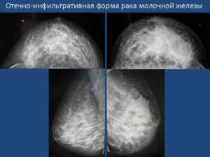 Отечно инфильтративная форма рака молочной железы