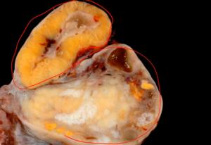 Что такое желтое тело в яичнике