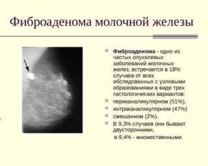 Фиброаденома молочной железы размеры для операции