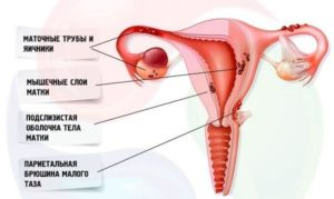 Эндометриоз матки что это такое доступным языком