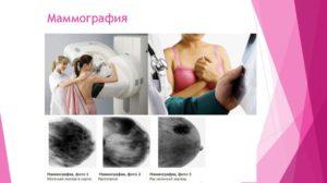 Как победить рак молочной железы