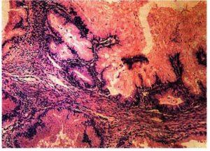 Серозно папиллярная аденокарцинома яичников