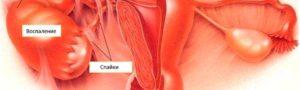 Воспаление яичника лечение антибиотиками