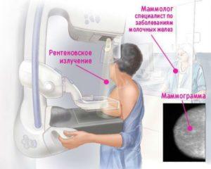 Маммография и узи молочных желез в чем разница