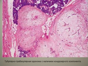 Тубулярная аденома молочной железы