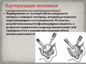 Электрокаутеризация яичников