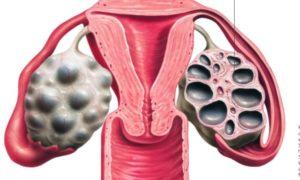Поликистоз яичников как выявить