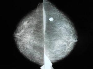 Фиброма молочной железы что это