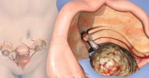 Пересадка яичников у женщин