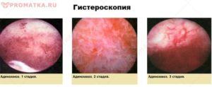 Эндометриоз шейки матки развивается после