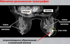 Мрт при раке молочной железы