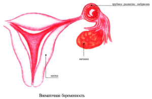Беременность с одним яичником и одной трубой
