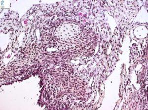 Бластома молочной железы